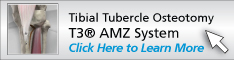 Tibial Tubercle Osteotomy using the T3® AMZ<br /> 						System