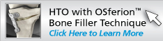 HTO with OSferion™ Bone Filler
